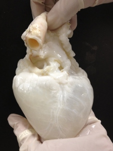 Image: Courtesy of RMR Labs, Texas Heart Institute
