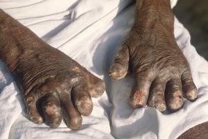 Leprosy2