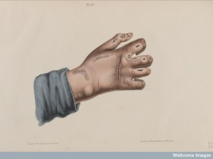 L0040719 Hand showing leprosy